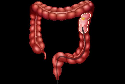 cancer du côlon-département de chirurgie digestive CHU Toulouse