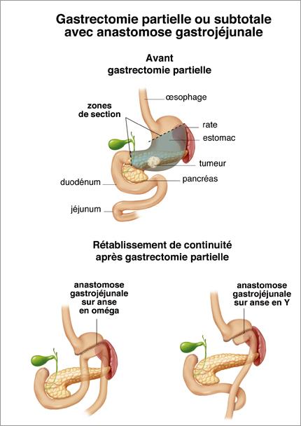 maladie oesophage/estomac-département de chirurgie digestive CHU Toulouse