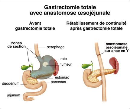 gastrectomie-département de chirurgie digestive CHU Toulouse