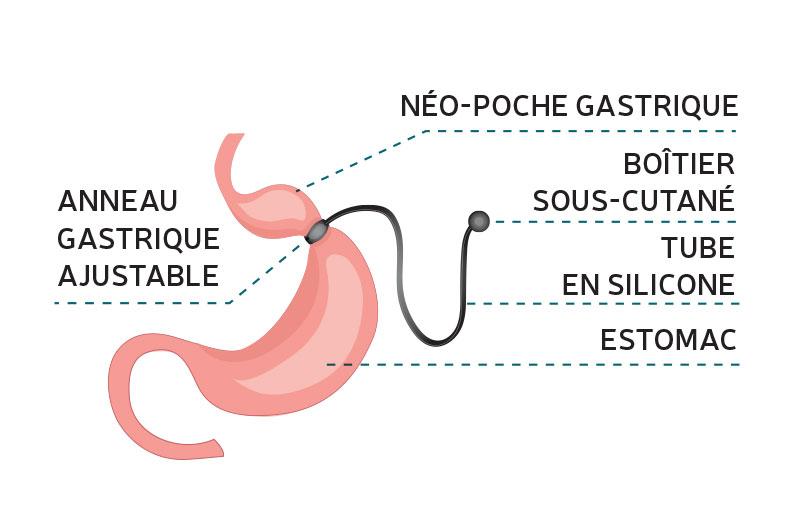 anneau gastrique-département de chirurgie digestive CHU Toulouse