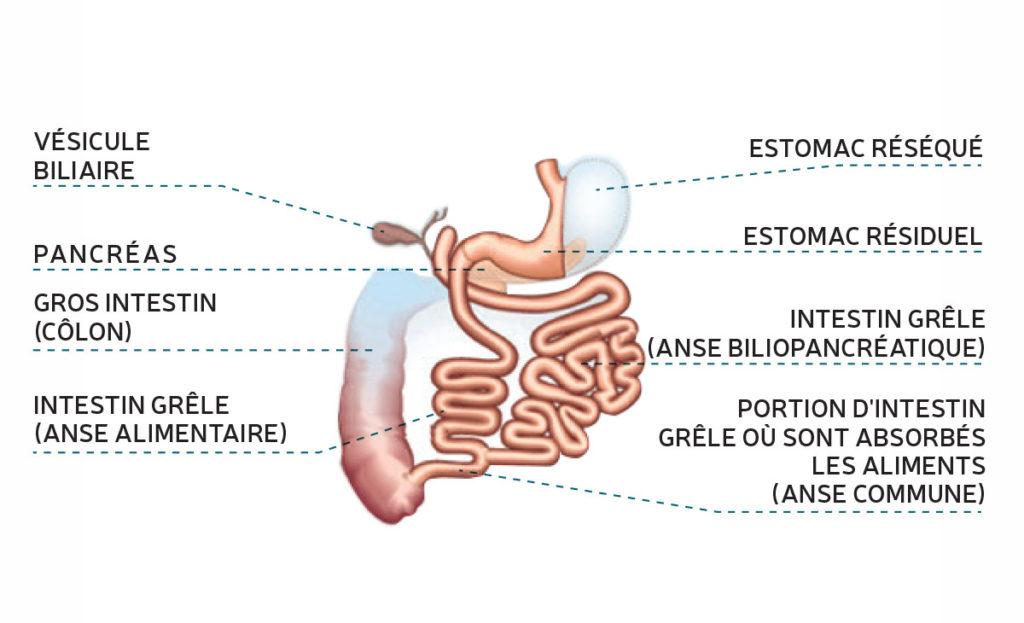 dérivation billion pancréatique-département de chirurgie digestive CHU Toulouse
